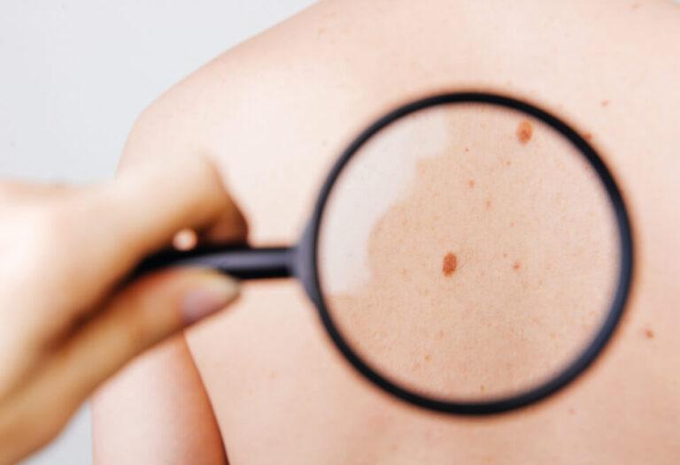 Usuwanie zmian skórnych